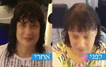 תוספות שיער רשת נשים