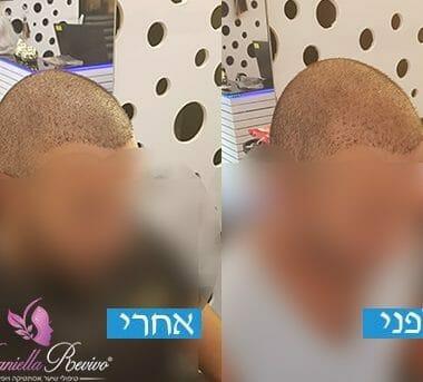 טיפול מילוי הדמייה לאחר השתלת שיער בטורקיה