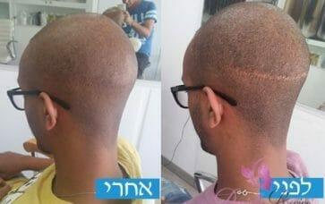תמונות לפני אחרי לפתרונות שיער לגברים