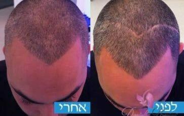 טיפוח שיער לגברים