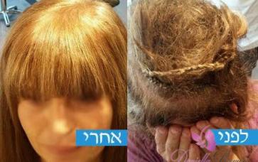 מילוי שיער לנשים לפני ואחרי