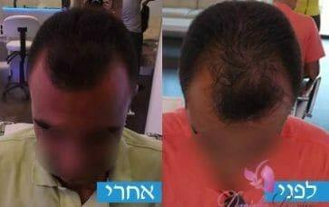 טיפול בשיער דליל בקרב גברים