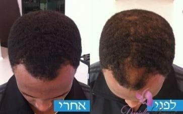 פתרון לשיער דליל אצל גברים