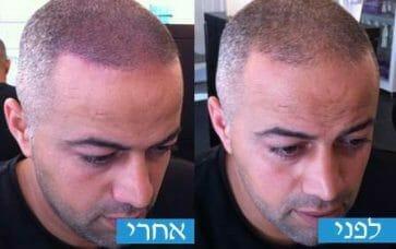 הדמיית שיער תמונות לפני ואחרי