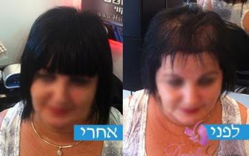 תמונות לפני ואחרי מילוי שיער