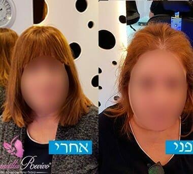 יחידות רשת תמונות לפני ואחרי