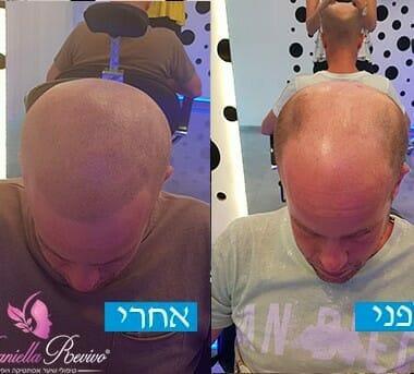 הדמיית שיער לפני ואחרי