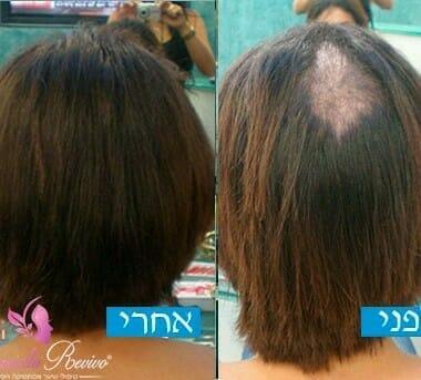 תמונות לפני ואחרי טריכוטילומניה