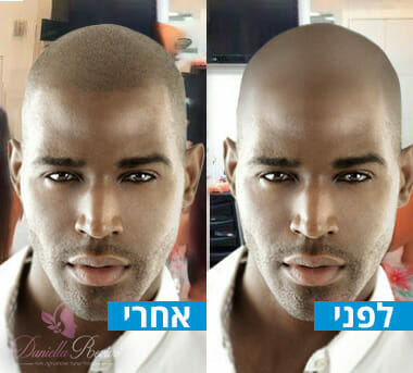 תמונות לפני ואחרי הדמיית שיער