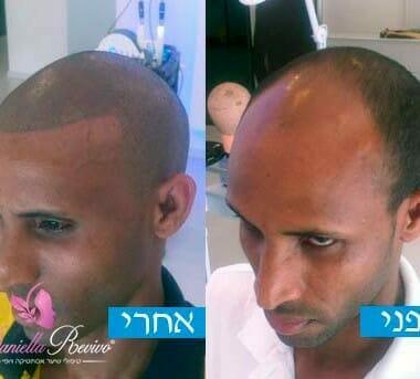 לפני ואחרי הדמיית שיער