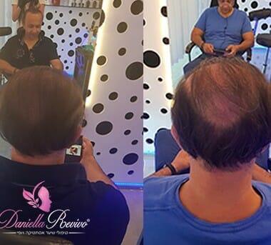 עיבוי שיער לגברים לפני ואחרי