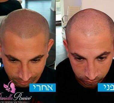 טיפולי הדמיית שיער