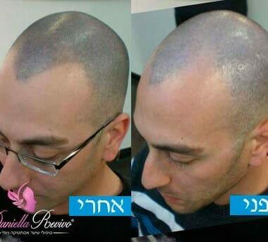 הדמית שיער תמונות לפני ואחרי