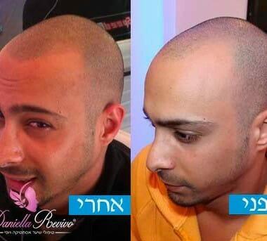 טיפול לשיער דליל בקרב גברים
