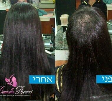 טיפול לשיער דליל בקרב נשים
