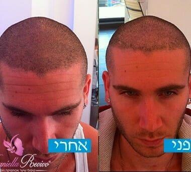 עיבוי שיער לגברים תמונות לפני ואחרי