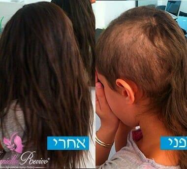 פתרונות לשיער דליל