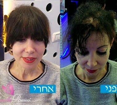 לפני ואחרי עיבוי שיער