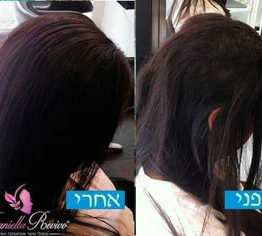 תמונות לפני ואחרי שיער דליל בקרב נשים