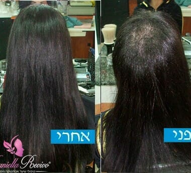 עיבוי שיער לנשים