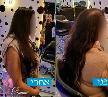 פתרון לשיער דליל בקרב נשים תמונות לפני ואחרי