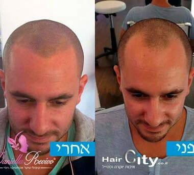 הדמיות שיער טיפולים