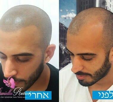 תמונות לפני ואחרי של הדמיית שיער