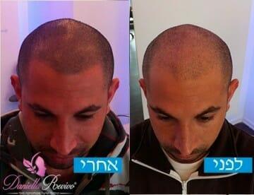 הדמיית שיער לגברים לפני ואחרי