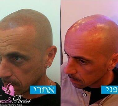 לפני ואחרי עיבוי שיער לגברים
