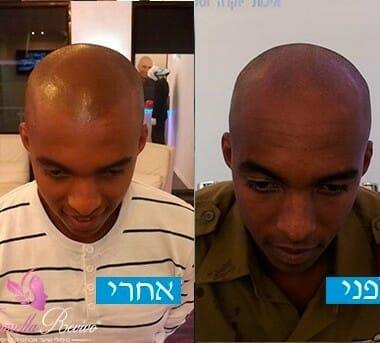 הדמיית שיער טיפול