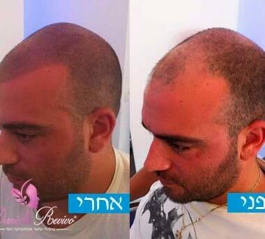 פתרון לשיער דליל לגברים