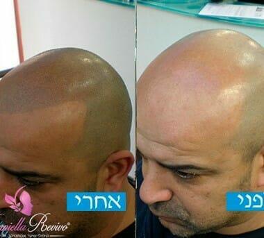הדמיית שיער לפני ואחרי טיפולים