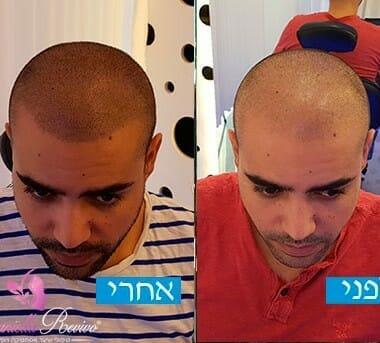 פתרונות לשיער דליל בקרב גברים