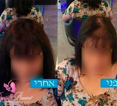 מילוי שיער לנשים