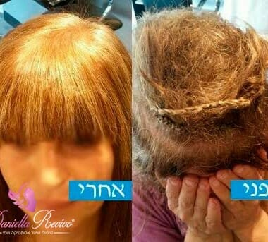 מילוי תוספות שיער